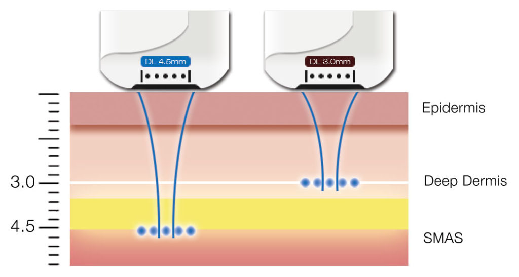 hifu medilift skin tightening diagram