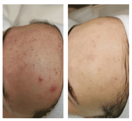 ipl acne treatment results