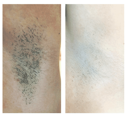 laser ipl shr painless hair removal results