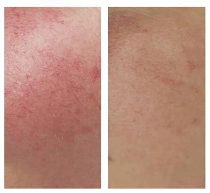 laser ipl rosacea treatment results