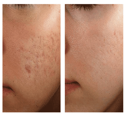 laser acne scar treatment results