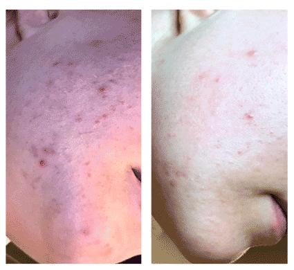 carbon facial skin rejuvenation results
