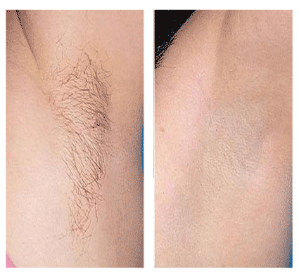 laser ipl painless hair removal results