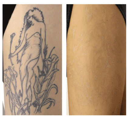 laser tattoo removal results