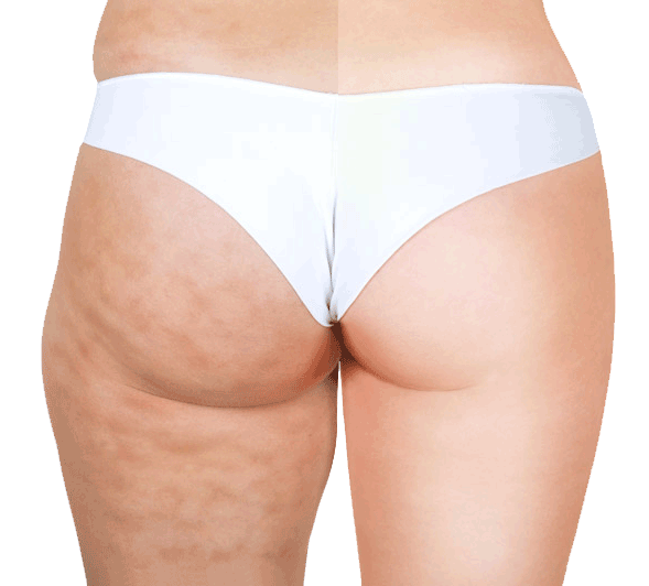 radiofrequency fat melting cellulite buttocks results